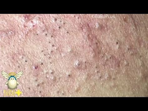 Forehead Blackheads, Cystic Acne And Pimples Extraction On