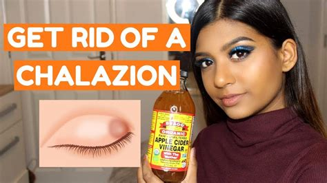 HOW TO GET RID OF A CHALAZION FAST AT HOME - YouTube