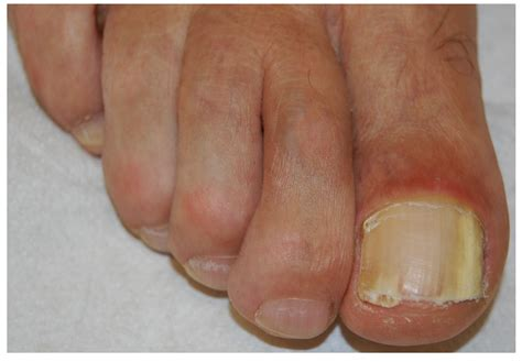 JoF   Free Full-Text   Onychomycosis: A Review
