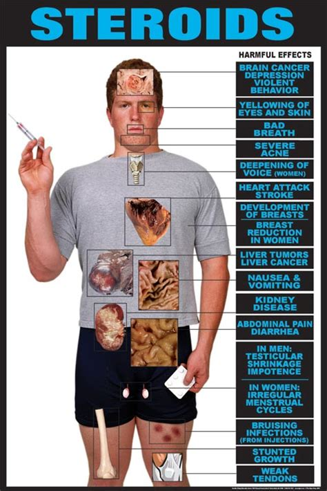 Steroids And Their Harmful Side Effects | Muscle & Strength
