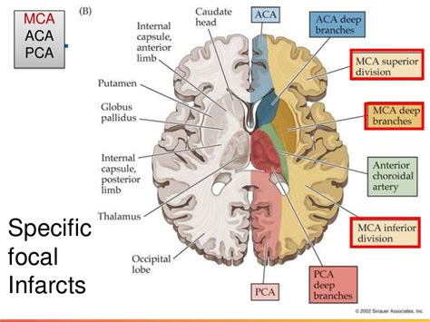 Ischemic stroke: Diagnosis and treatment – Doctor Guidelines