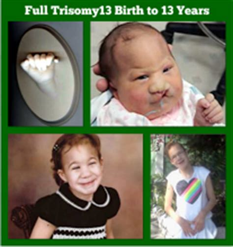 Trisomy 13 Life with Natalia ~ Transformed by Love